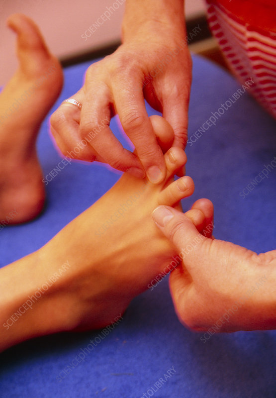 Foot physiotherapy