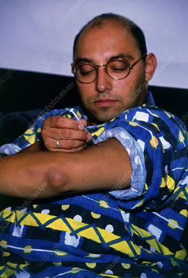 Diabetic self-injecting insulin into his upper arm
