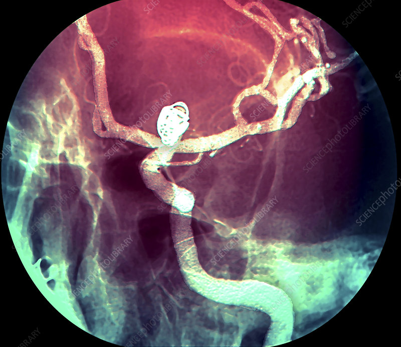 Aneurysm treatment, angiogram