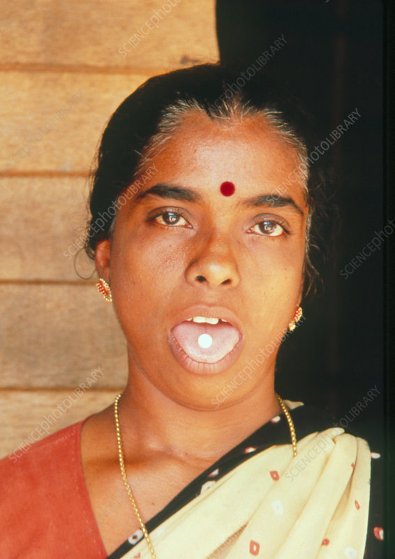 Indian woman with anti-filariasis pill on tongue