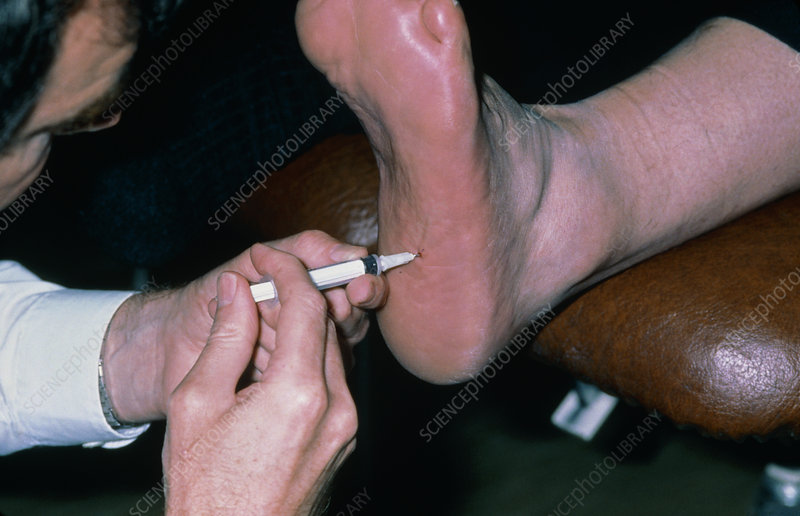 Corticosteroid injection into foot for fasciitis
