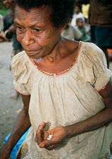 Woman holding pills of elephantiasis drugs