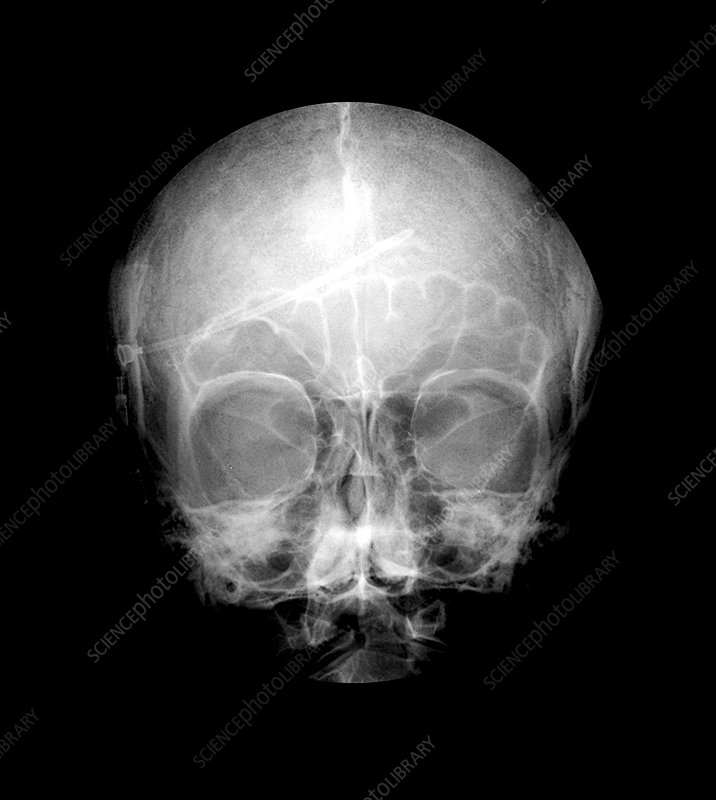 Frontal View of the Skull With a Catheter
