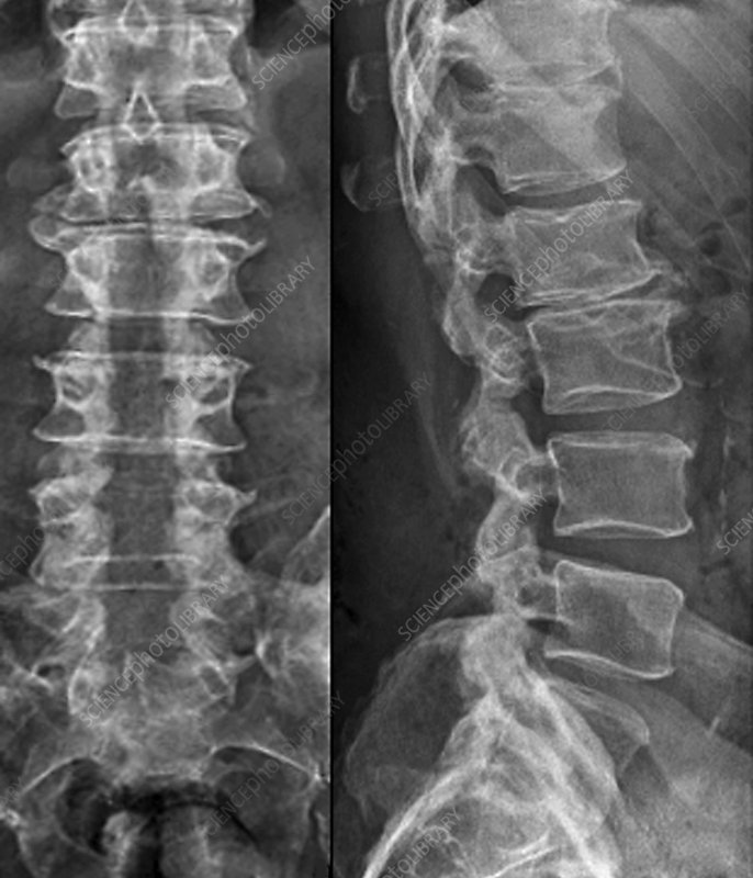 Laminectomy for spinal stenosis, X-ray