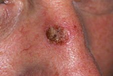 Seborrhoeic wart treatment