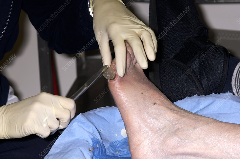 Chiropodist dressing a foot ulcer
