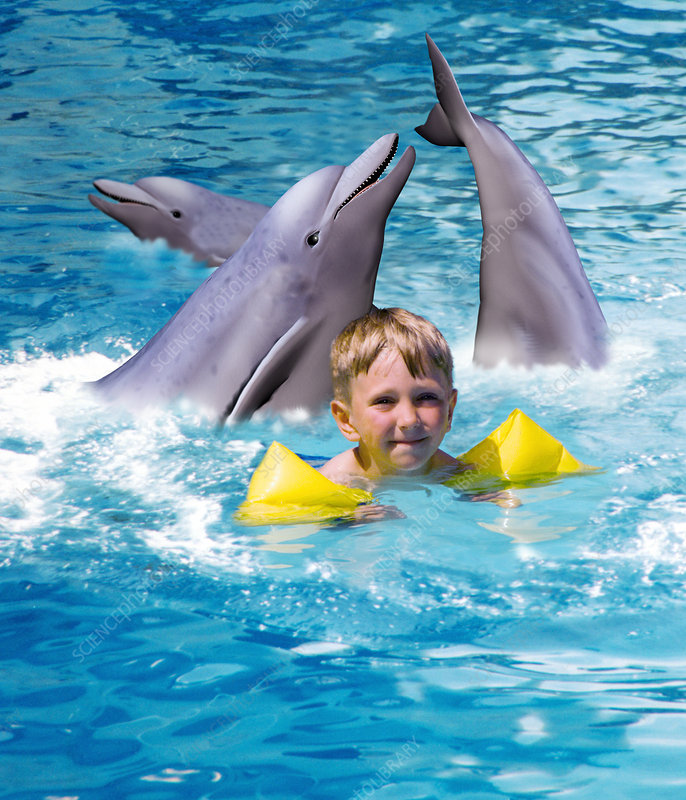 Computer art of a boy receiving dolphin therapy