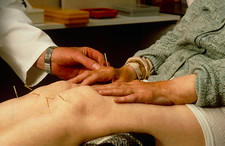 Acupuncturist applying needles to knees & hands