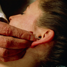 Acupuncure in addiction: smoker's ear stud