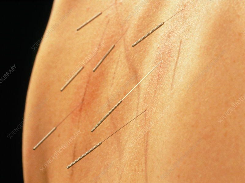 Acupuncture to reduce 'aggressive energy'