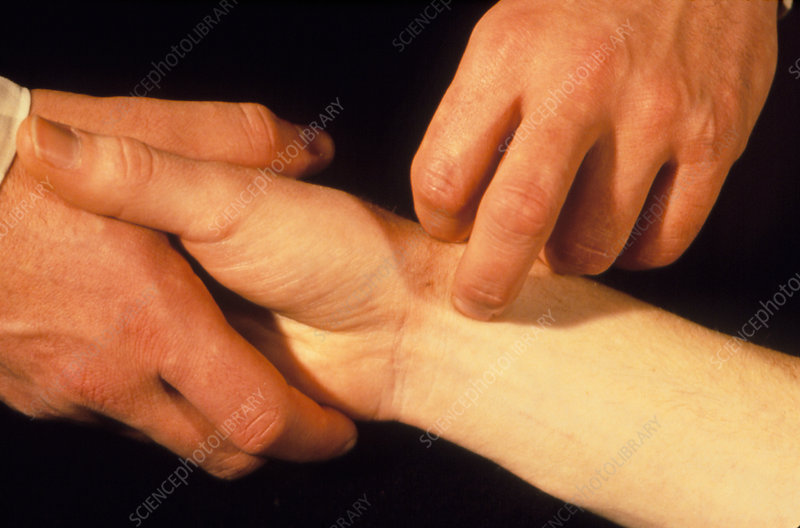 Acupuncture to reduce aggressive energy