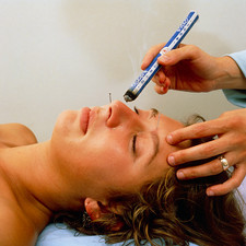Acupuncturist treating hayfever patient