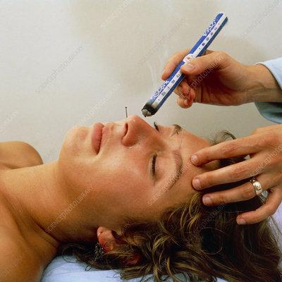 Acupuncturist treating hayfever patient