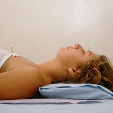 Patient teated for hay fever by Acupuncture