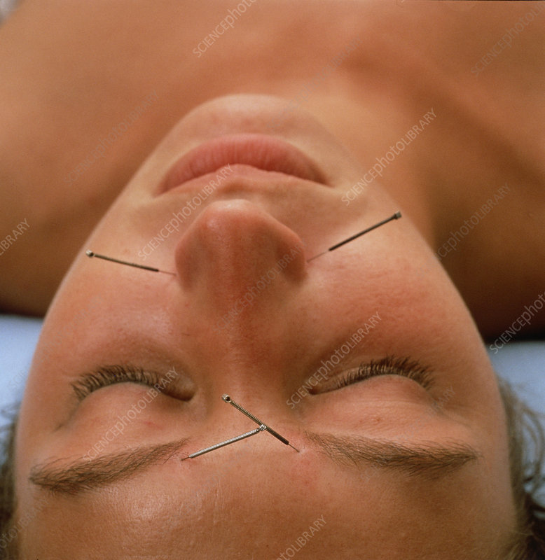 Patient undergoing acupuncture treatment