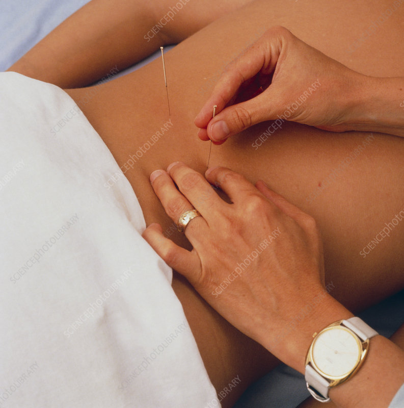 Acupuncurist manipulating needles in lower back