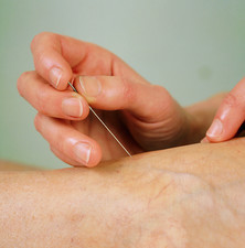 Acupuncture to the foot