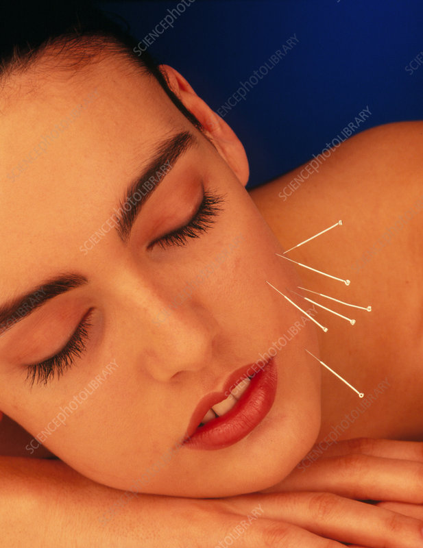 Woman with acupuncture needles in cheek