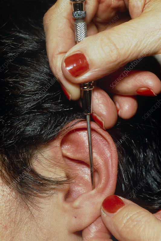 Acupuncure in ear to cure cigarette addiction