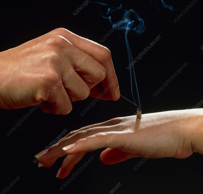 Acupuncturist applying moxibustion on back of hand