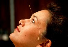 Woman with acupuncture needles around her face