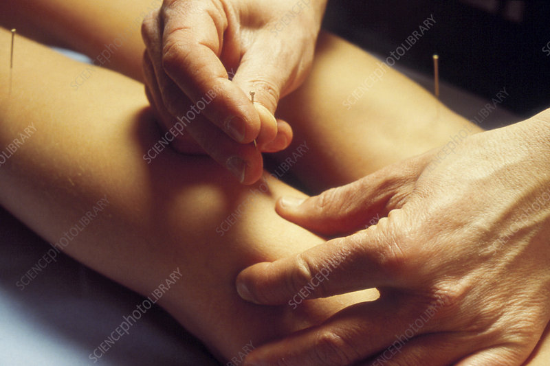 Woman having acupuncture performed on her legs