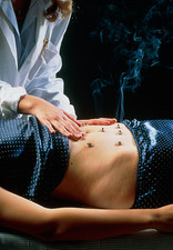 Acupuncturist carries out moxibustion on abdomen