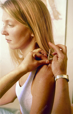 Inserting acupuncture needle into woman's shoulder
