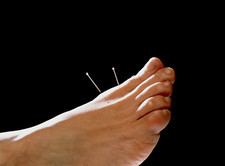 Acupuncture needles in a woman's foot