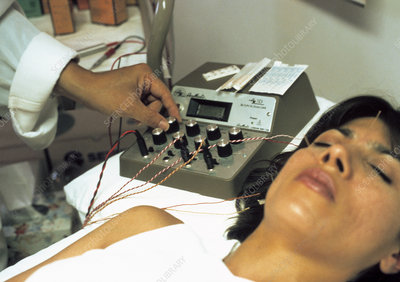 Face electro-acupuncture