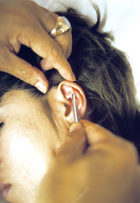Ear acupuncture