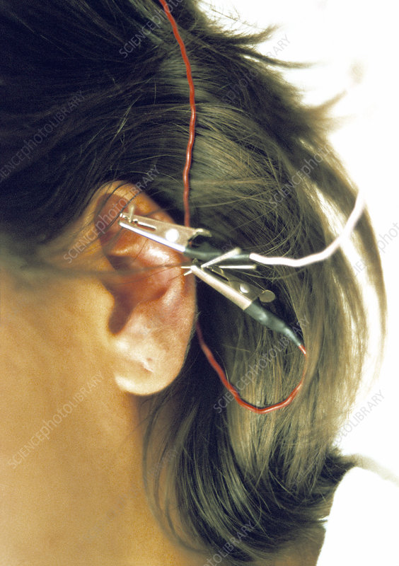 Ear electro-acupuncture