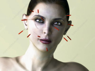 Facial acupuncture, artwork
