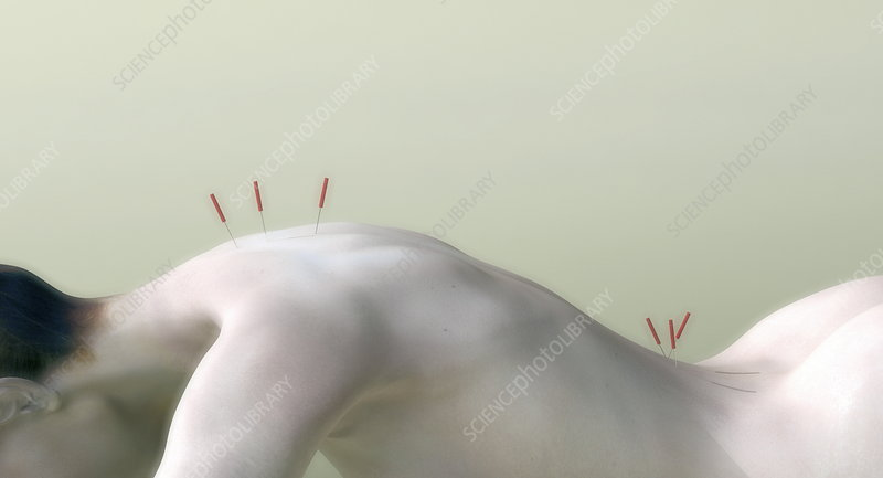 Acupuncture on woman's back, artwork
