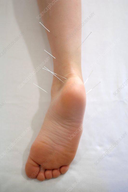 Acupuncture treatment, Severs Disease