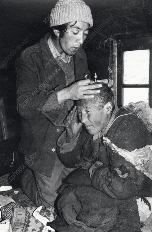 Tibetan doctor treating with moxibustion
