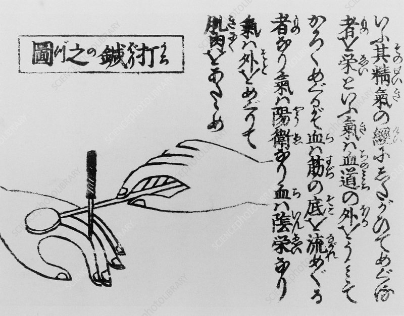 Japanese illustration showing acupuncture on hand.
