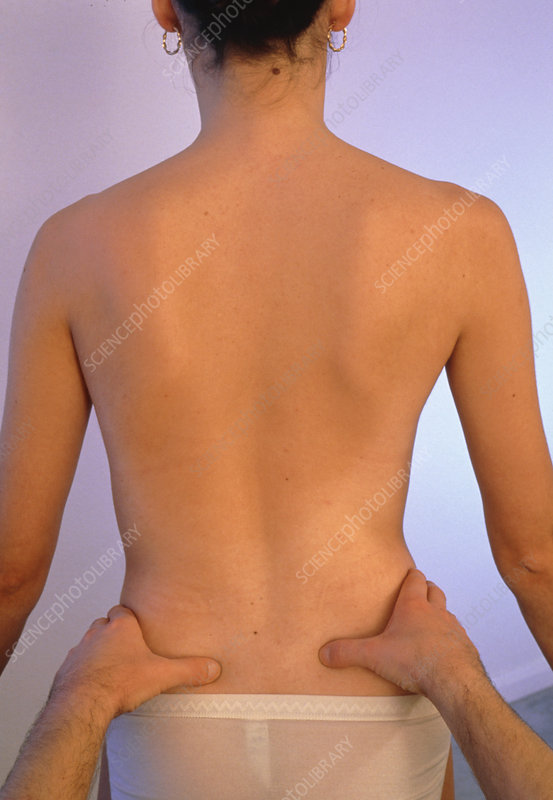 Osteopath examining the back of a patient