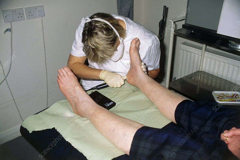 Chiropodist files calluses from patient's foot
