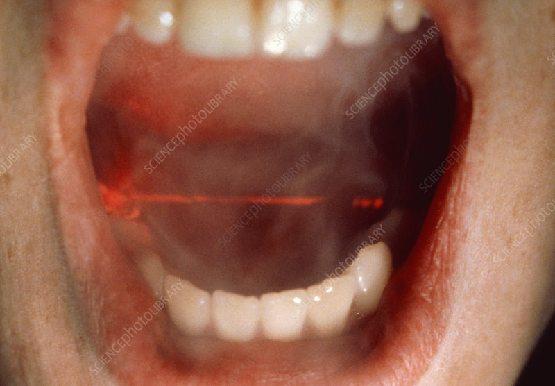 Use of laser techniques in dentistry