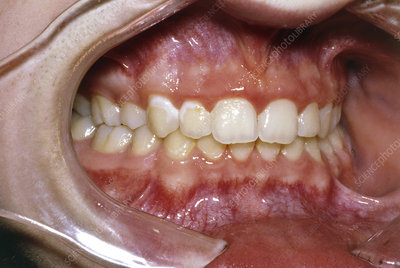 Close-up of teeth after removal of fixed braces