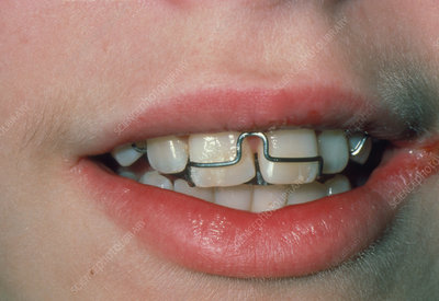 Close-up of child's mouth fitted with dental brace