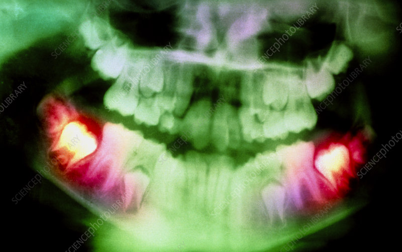 Colour pan-oral X-ray of erupting molars in child