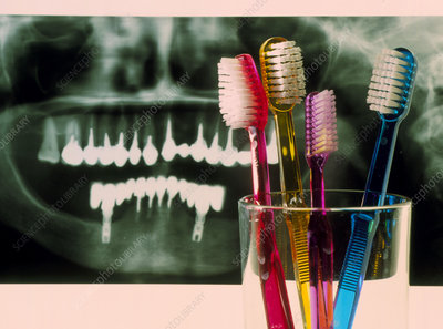 Toothbrushes in front of a dental X-ray of teeth