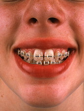 Girl with fixed brace on her teeth