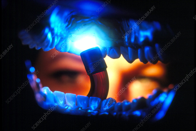 View from inside the mouth of dental crown fitting