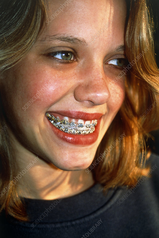 View of a girl with fixed braces on her teeth