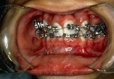 View of malaligned teeth being treated with braces
