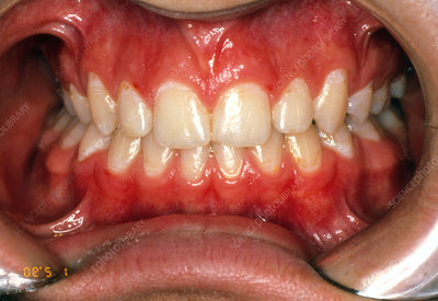 View of teeth after treatment with dental braces