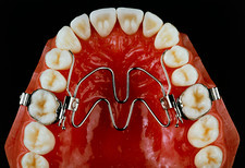 Shape memory metal dental brace on a model jaw